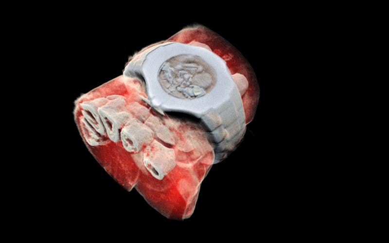 3D Color X-rays